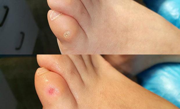 Jak usuwa się odciski na stopach