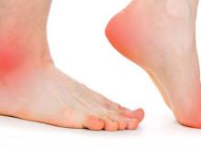 Pęcherze na stopach