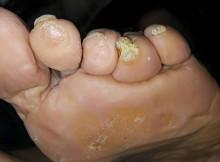 Odciski na palcach stóp