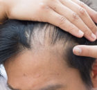 transplantacja-włosów,-klinika-leczenia-łysienia,-trycholog-katowice-1