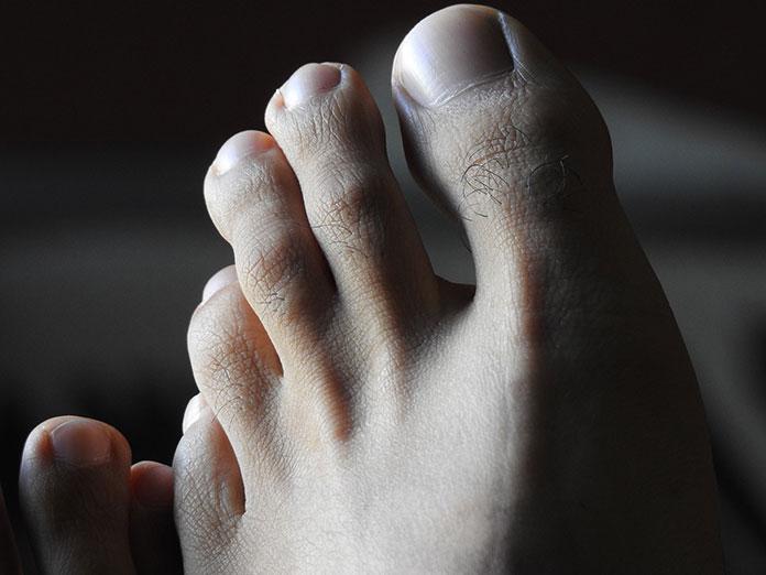 Koszmarne paznokcie u stóp - do jakiego specjalisty pójść w Bydgoszczy?
